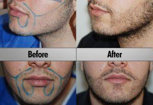 Arricchimento di barba