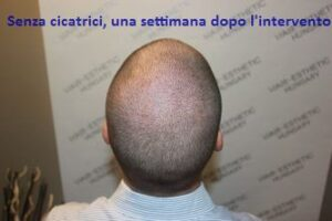 FUE - Travellini Mamba Nano Long Hair